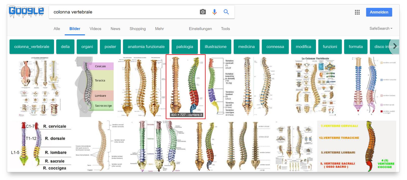 """Ricerca immagini per """"Colonna vertebrale"""""""